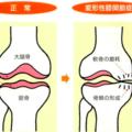 膝の変形による痛み