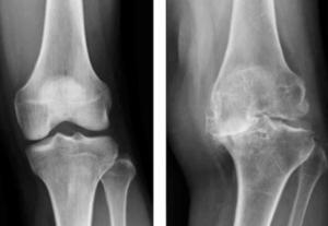 膝のレントゲン