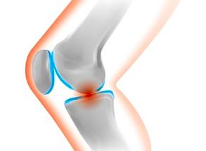 膝を曲げると痛い