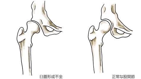 股関節の問題