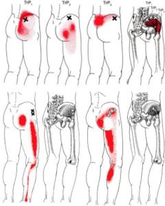 坐骨神経痛に関連する筋肉