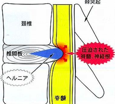 椎間板の出た方