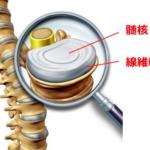 椎間板ヘルニアの構造